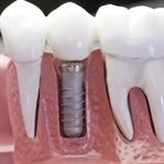 Implant Diş Nedir İmplant Diş Deneyimim