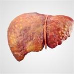 Karaciğer Sirozu Için Kapsamlı Rehber