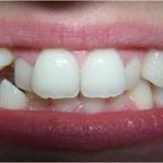 Dişlerimizi Sağlıklı ve Beyaz Tutmak Ne Yapabiliri