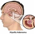 Hipofiz Adenomu için Kür