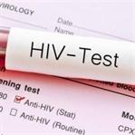 HIV Virüsü Nedir ve Nasıl Bulaşır ?