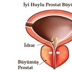 İyi Huylu Prostat için Kür