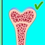 Kemiklerinizı Sağlıklı Tutmanın Yolları