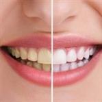 Evde Diş Beyazlatmanın 5 Kolay Yolu
