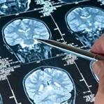 MS Hastalığı ve Bitkisel Kür