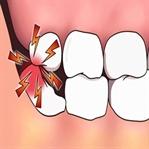 20'lik Diş Ağrısına Ne İyi Gelir? 10 Etkili Yöntem