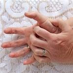 Bir Sağlık Sorununuz Var İse Elleriniz Sizi Uyarır