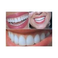 Diş Beyazlatma (Bleaching) Nedir, Nasıl Yapılır?