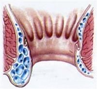 Hemoroid Hastalığı