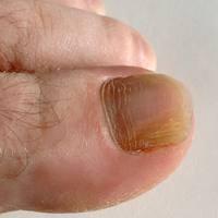 Tırnak Hastalıkları,tırnakdaki Renk Değişimi!