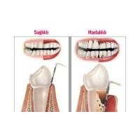 Ağız Ve Diş Sağlığı Hakkında Bilinmesi Gerekenler?