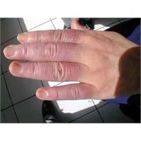 Sürekli Ellerim Üşüyor.. Raynaud Hastalığı