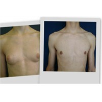 Jinekomasti (Erkeklerde Göğüs Küçültme Ameliyatı)