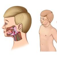 Kabakulak Hastalığı Ve Belirtileri