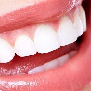 Evde Pratik Diş Beyazlatma Yöntemi