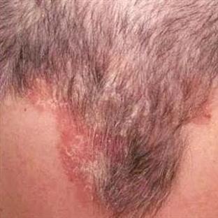Kepek değil saç kökü egzaması, saçların tehlikede