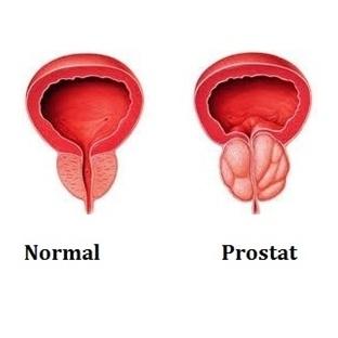 Prostat Büyümesi ve Tedavisi
