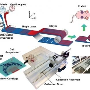 Yanık Tedavisi İçin 3D Canlı Doku Yazıcı Yapıldı