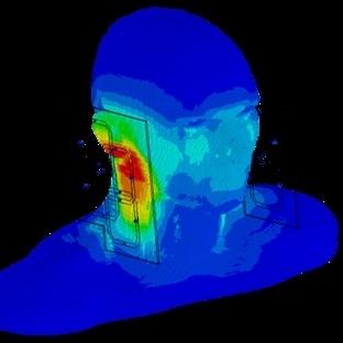 Akıllı Telefonların Vücudumuzu Etkileyen Radyasyon