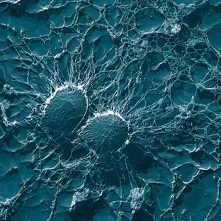 Antibiyotik Yerine Lizozom Nano Parçacık Tedavisi