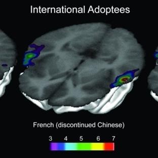 Beyinde Unutulan Diller Emarla Görüntülendi