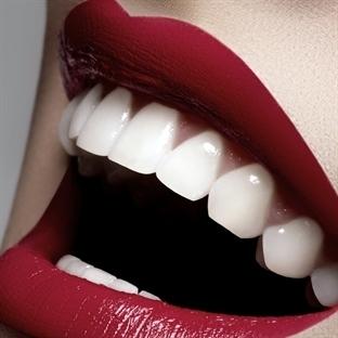 Dişleri Beyaz Göstermenin Kolay Yolu!