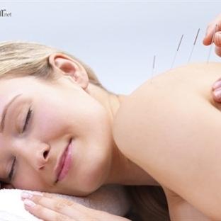 Akupunktur İle Nasıl Zayıflanır ?