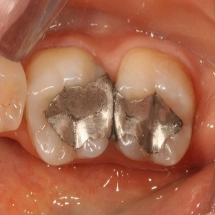 Dolgulu diş ağrısına çözüm nedir