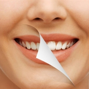 Sararan ve Grileşen Dişler İçin Ne Yapmalı?