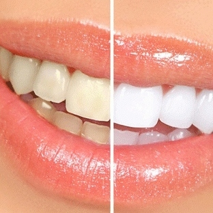 Sararan Dişlerinizi Evde Beyazlatabilirsiniz