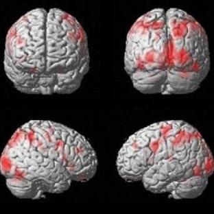 Beyin Hasarına Yol Açan Gıdalar