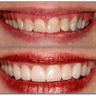 Diş Etleri Tedavisi ve Estetiği