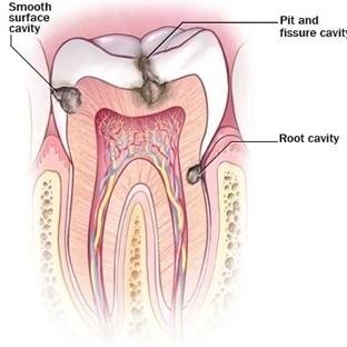 Dişler Çekilmeden Lazerle Tedavi Edilebilecek