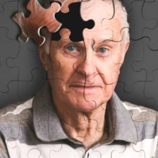 Kan Testiyle Erken Alzheimer Teşhisi