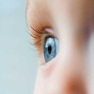 Çocuğunuzda Gözde kayma var mı