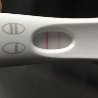 Hamilelikte silik çizgi ne demek?