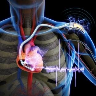 Kas Gücünden Enerji Sağlayan Kalp Pili Yapıldı