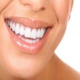Saglıklı Bir Dişe Sahip olmak İçin 5 Öneri