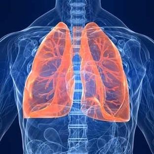 Akciğer Hastalıkları Kanser Riskini Arttırıyor