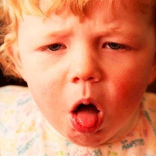 Difteri-KuşPalazı Tedavisi