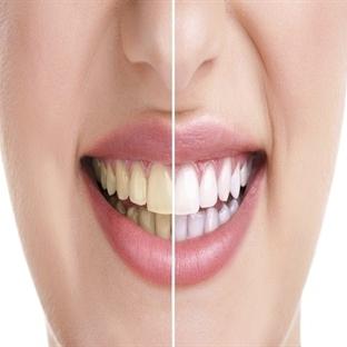 Diş sararmasına ne iyi gelir?