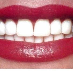 Dişler Neden Sararır ve Beyazlatma Yöntemleri