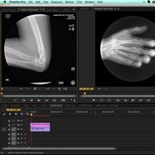 Eklem Röntgenleri İçin Gifler