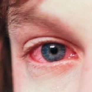Yazın Kırmızı Göz Hastalığına Dikkat
