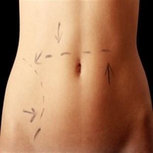 İz Bırakmadan Karın Germe Ameliyatı