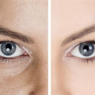 Göz altı morluğu ve torbalanmasında güncel tedavi
