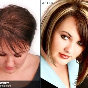 Protez saç ve peruk uygulamaları