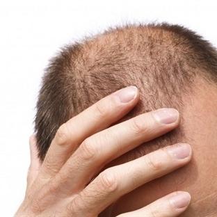 Saçı Dökülen Erkekler Dikkat Etmeli