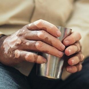 Vitiligo Hastalığı ve Bitkisel Tedavisi