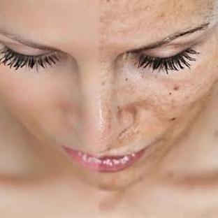 Yüz Lekelerini Durdurmanın İki Temel Reçetesi